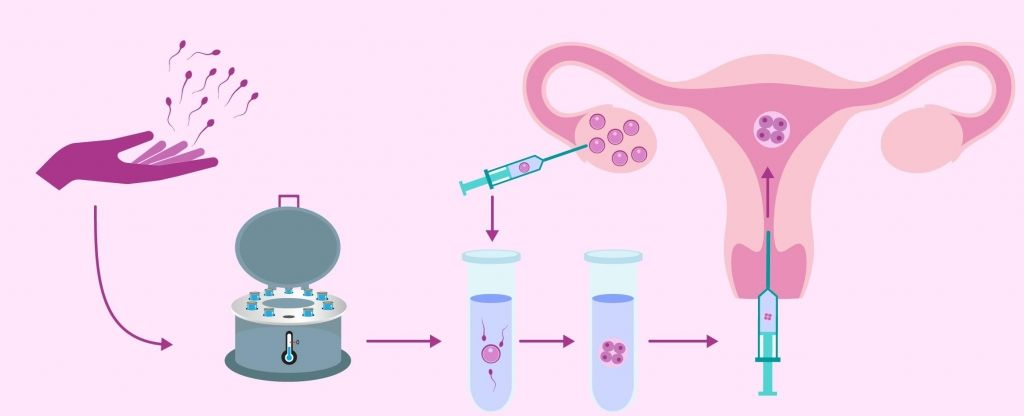 vse-o-donorstve-spermy-2.jpg