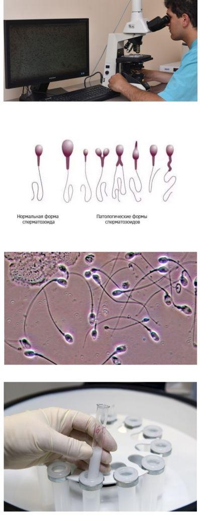 Рецепты для увеличения движения сперматозоидов полезная