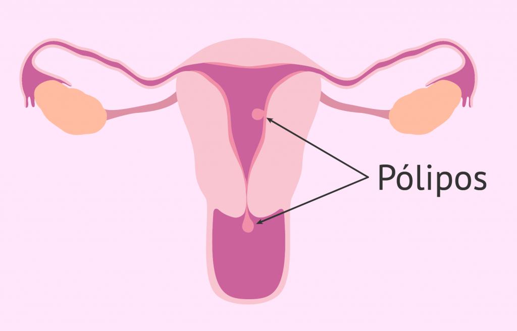 polipos-uterinos-malignos.jpg.png