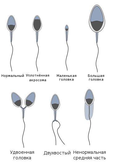 spermatozoidy-vidy.jpg
